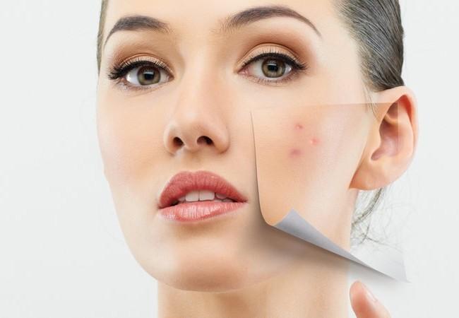 Was hilft wirklich bei der Akne?