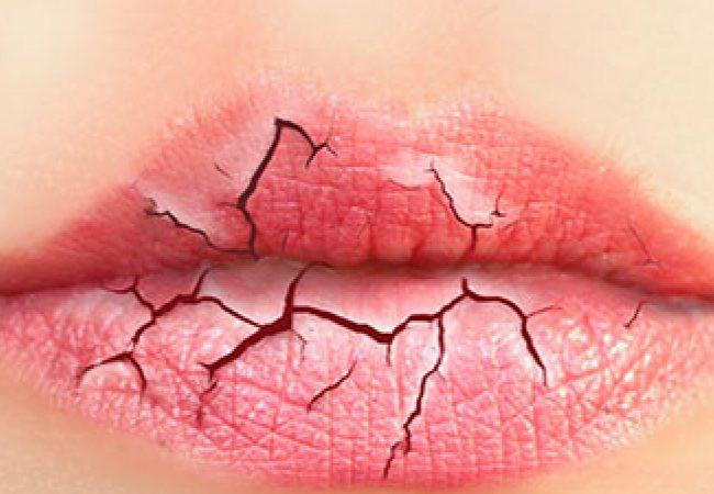Lippenpflege im Winter – geprüfte Methoden